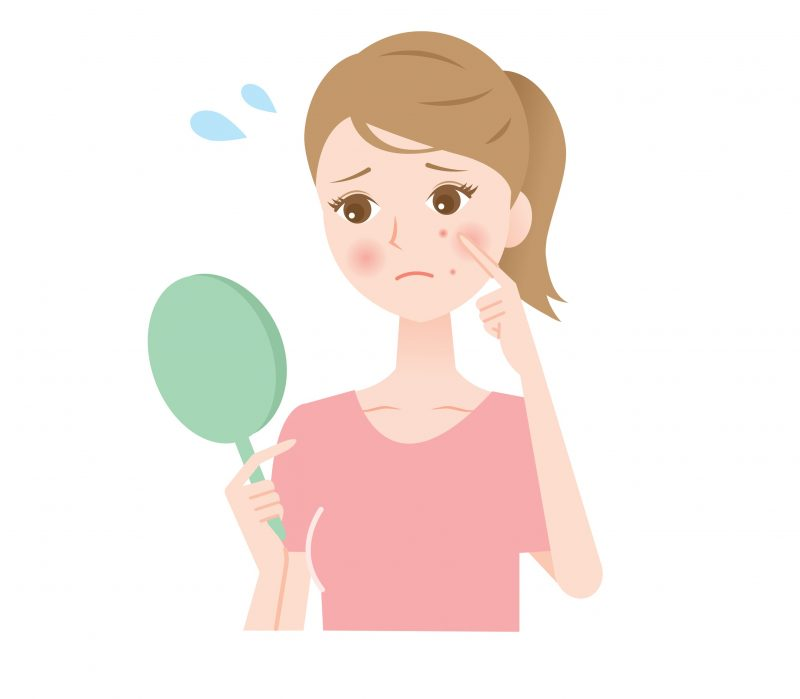 Pimples are caused by the excessive production of sebum in the pores.